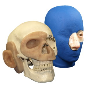 Modellschädel mit Epithesen