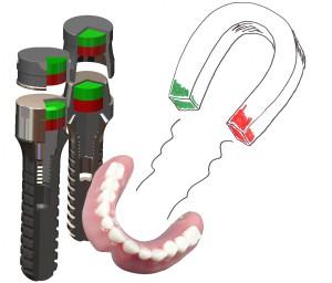 Prinzip Magnetprothese