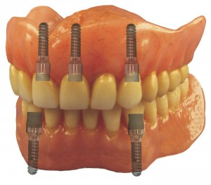 Magnetic dentures › Steco