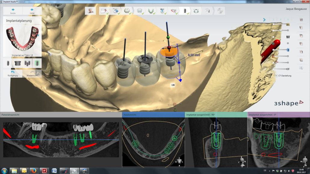 2 0 mm pilot drill sleeve in 3Shape Implant Studio › Steco