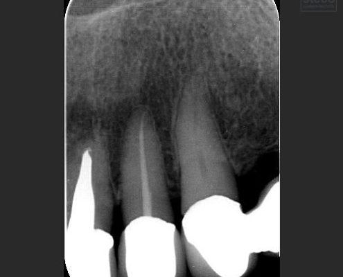 endodonitsch behandelter kalzifizierter Zahn