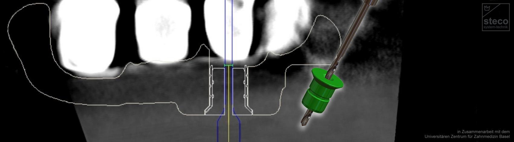 Endodontie durch Hülse