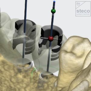 Offene StecoGuide Bohrhülse für Universalhülsen in 3Shape verfügbar
